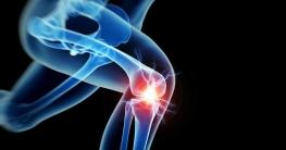 Bild zeigt Knie