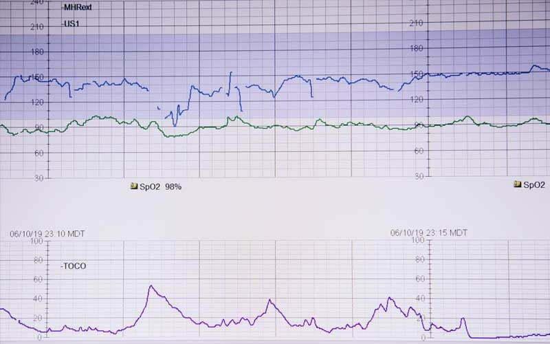 Bild zeigt Herzrate auf einem EKG